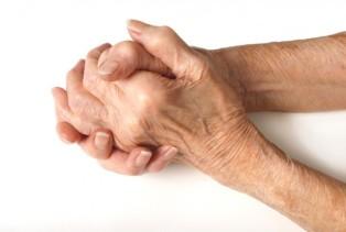 Rheumatoid-Arthritis hands